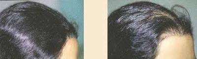 زيت الطاووس الطبيعي من عذاري لعلاج جميع مشاكل الشعر 542169155